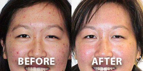 Acne Scar Removal Dermatology