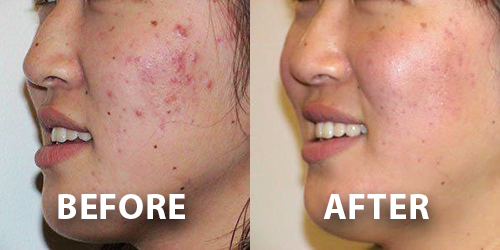 Acne Scar Removal Dermatology