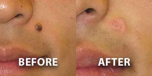 Mole Removal Dermatology