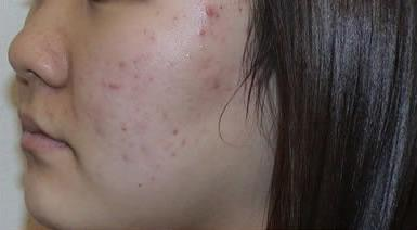 Acne Scar Removal Before & After Patient #63