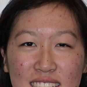 Acne Scar Removal Before & After Patient #66