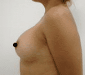 Breast Augmentation Before & After Patient #195