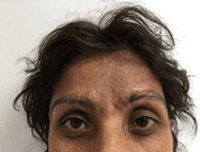 Brow Lift Before & After Patient #210