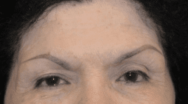Botox Before & After Patient #157