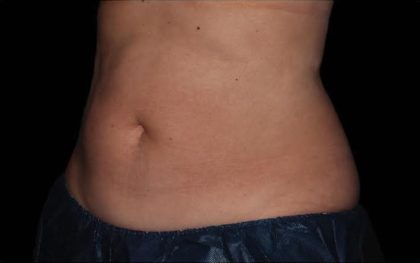 CoolSculpting Before & After Patient #286