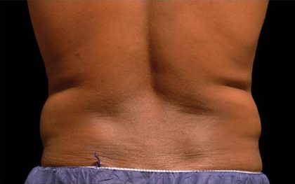 CoolSculpting Before & After Patient #267