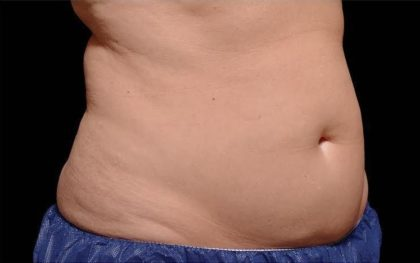 CoolSculpting Before & After Patient #269