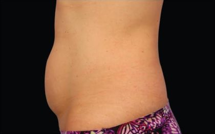 CoolSculpting Before & After Patient #282