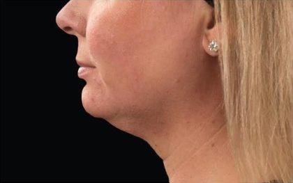 CoolSculpting Before & After Patient #287