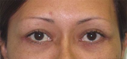 Eye Lift Before & After Patient #215