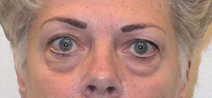 Eye Lift Before & After Patient #219