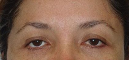 Eye Lift Before & After Patient #236