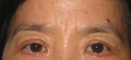 Eye Lift Before & After Patient #237