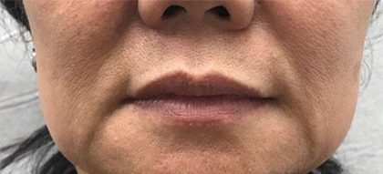 Facial Fillers Before & After Patient #176
