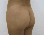 Fat Transfer Before & After Patient #294