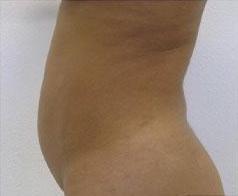 Liposculpture Before & After Patient #309