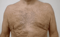 Male Breast Reduction Before & After Patient #203