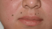 Mole Removal Before & After Patient #96