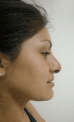 Rhinoplasty Before & After Patient #206
