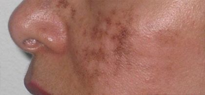 Scar Removal Before & After Patient #144