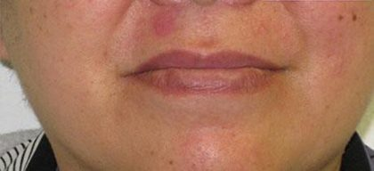 Scar Removal Before & After Patient #146