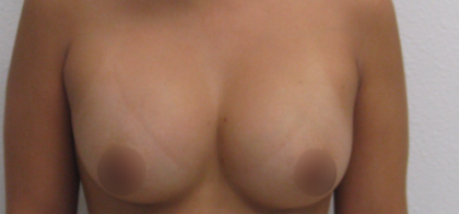 Breast Augmentation Before & After Patient #912