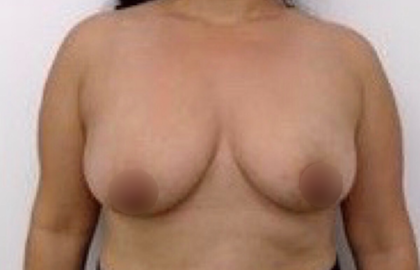Breast Augmentation Before & After Patient #915