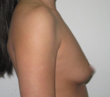 Breast Augmentation Before & After Patient #918
