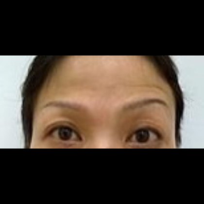Botox Before & After Patient #1011