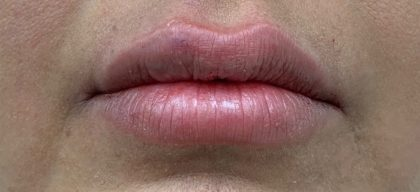 Lip Fillers Before & After Patient #1035