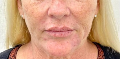 Facial Fillers Before & After Patient #1106