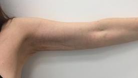 Liposculpture Before & After Patient #1098