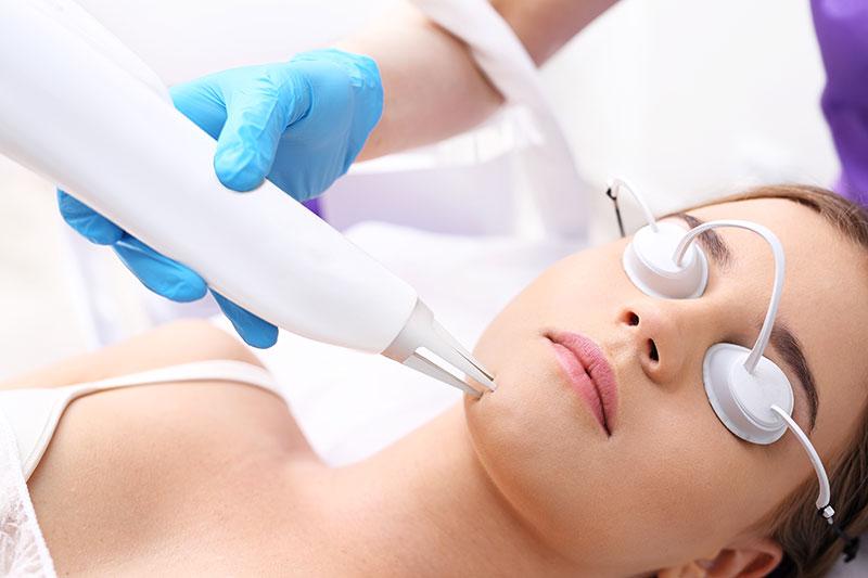 Best Acne Treatment Santa Ana Alhambra Skinzone Plastic Surgery