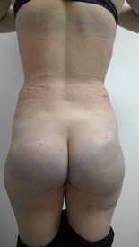 Brazilian Butt Lift Before & After Patient #1188