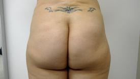 Brazilian Butt Lift Before & After Patient #1191