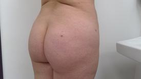Brazilian Butt Lift Before & After Patient #1194