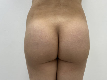 Fat Transfer Before & After Patient #1245