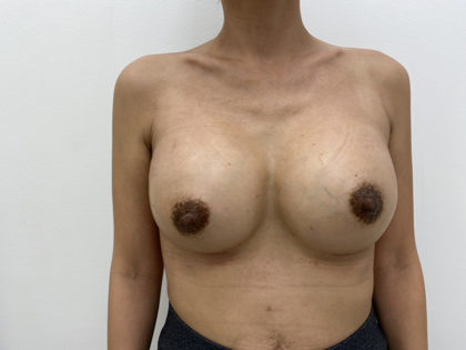 Breast Augmentation Before & After Patient #1254