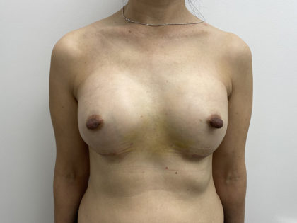 Breast Augmentation Before & After Patient #1251