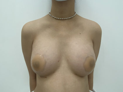 Breast Augmentation Before & After Patient #1248