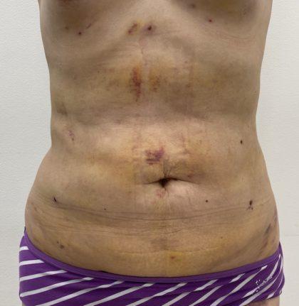 Liposculpture Before & After Patient #1355