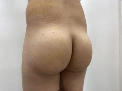 Brazilian Butt Lift Before & After Patient #1387