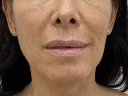 Lip Fillers Before & After Patient #1410
