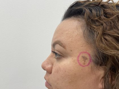 Mole Removal Before & After Patient #1425