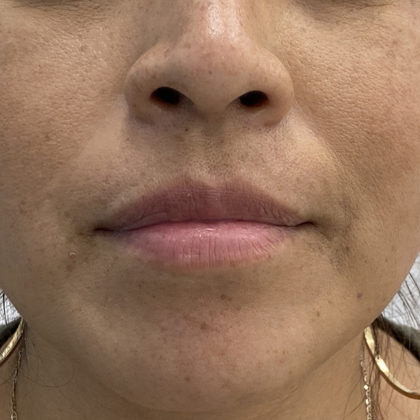 Lip Fillers Before & After Patient #1330