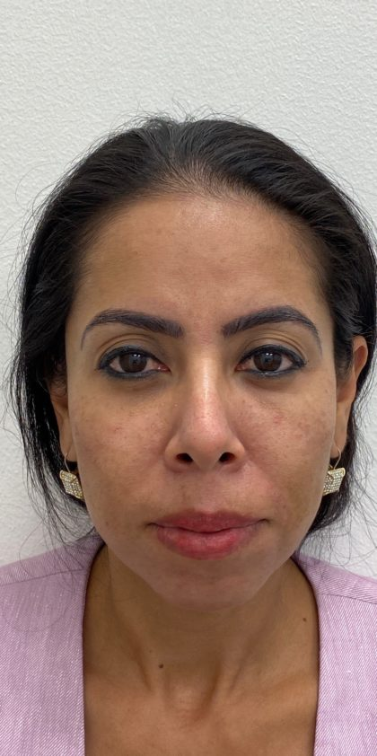 Facial Fillers Before & After Patient #1532
