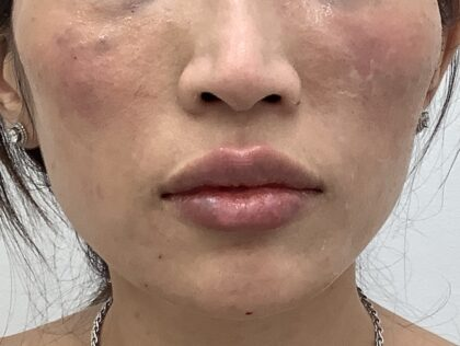 Lip Fillers Before & After Patient #1706