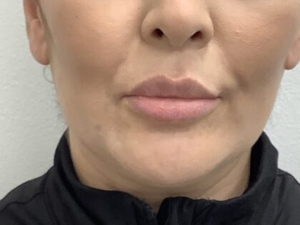 Lip Fillers Before & After Patient #1684