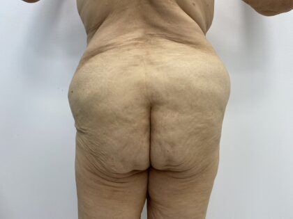 Fat Transfer Before & After Patient #1670
