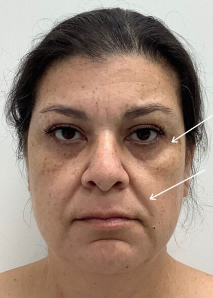 Facial Fillers Before & After Patient #1746